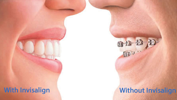 Somers Invisalign